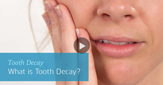 Tooth decay video by Semiahmoo Dental in South Surrey