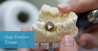 CUSP FRACTURES video by Semiahmoo Dental in South Surrey
