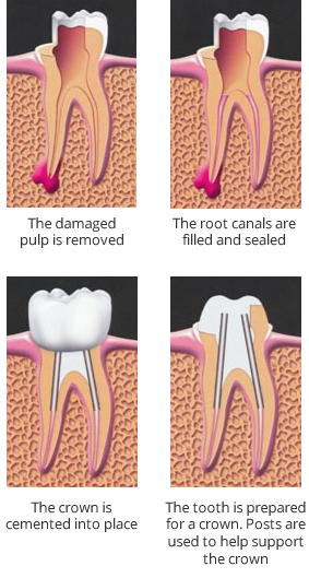 root-canal