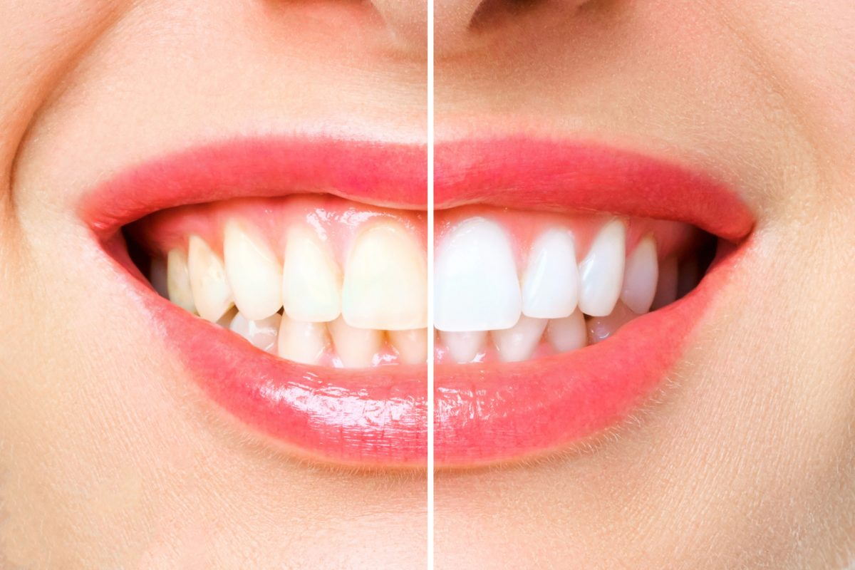 woman teeth before and after teeth whitening