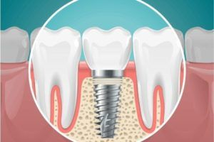 One of the Comprehensive teeth treatments of root canal