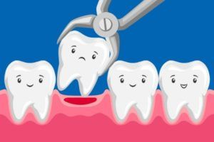 Tooth Extraction service in south surrey dental