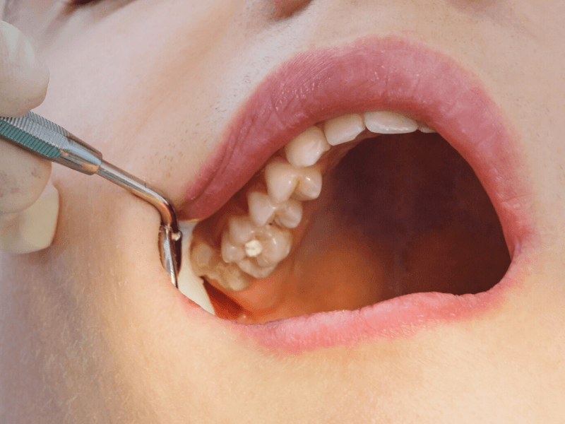 Close up treatment of root canals