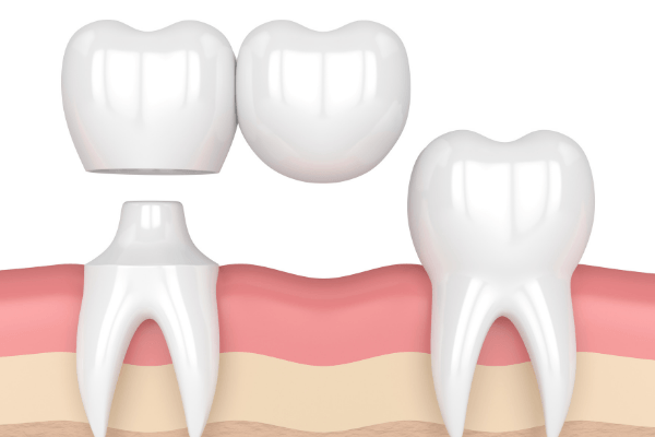 our south surrey dentist can provide cantilever teeth service for solving your dental bridge issue