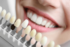 local white rock dentist can help you do implant support bridge for your teeth