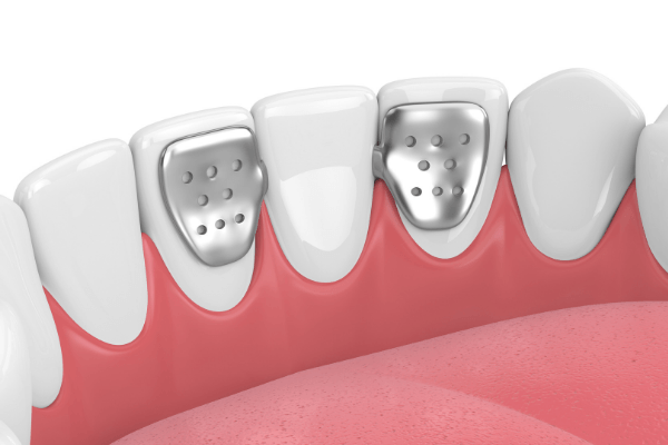 our surrey dentist can use maryland bridge can jaw with your teeth make your teeth looks perfectly